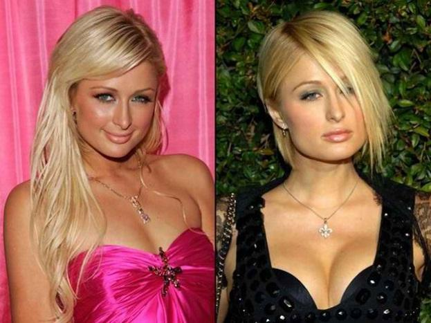 paris hilton before and after
